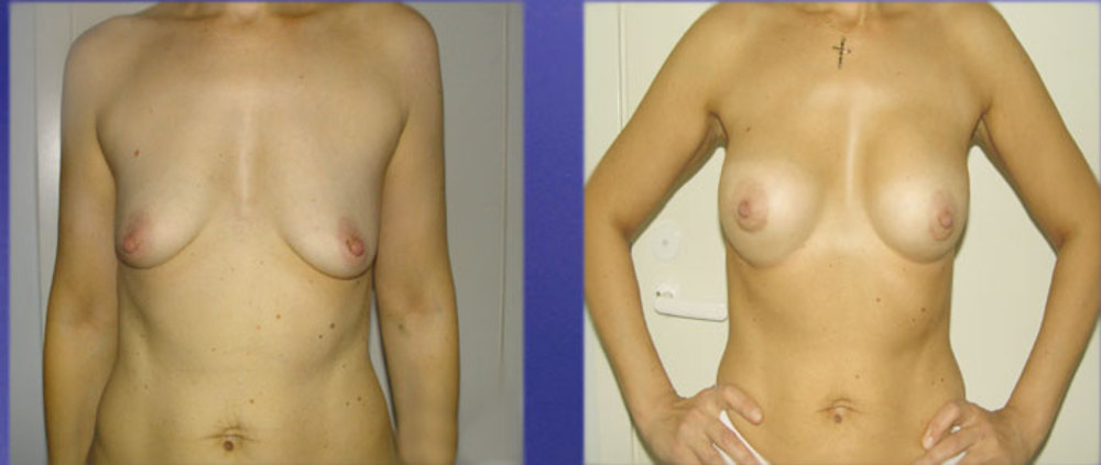 На операцию по увеличению или изменению формы груди идут те, у кого от прир