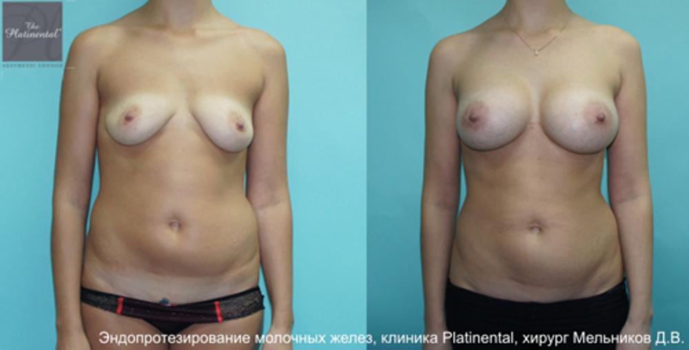 Как увеличить грудьв домашних условиях упражнения в 11 лет. рецепт увеличен