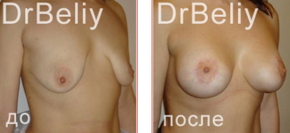 Dirty jack увеличение груди? Dirty jack увеличение