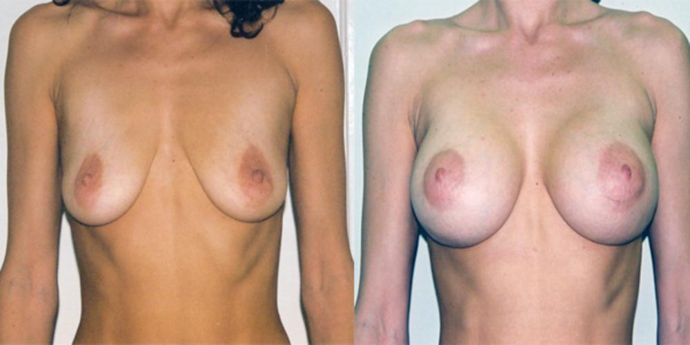 Увеличение груди (увеличивающая маммопластика), фото до и после. Хирург Ко