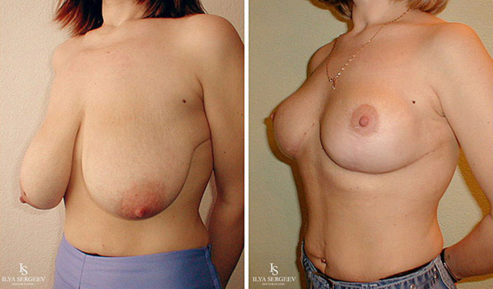 Хочу реально большую грудь! Посоветуйте). Уменьшение груди. отзывы.