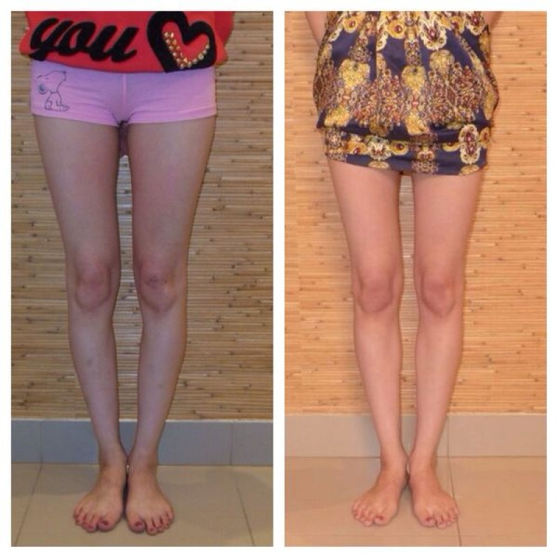 кто удлинил ноги с помощью упражнений отзывы фото этом