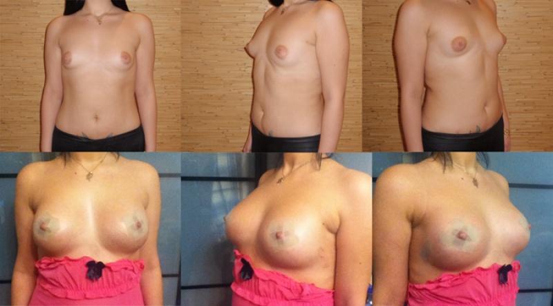 как увеличить грудь после гв