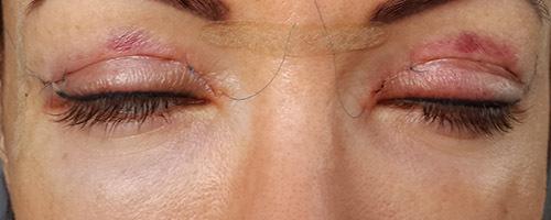 Осложнения после блефаропластики   Конъюнктивит, красные глаза ...