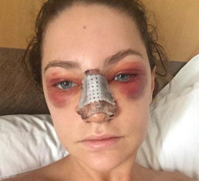 Последствия после ринопластики носа