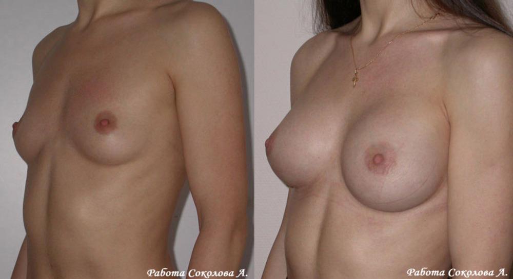 Увеличение груди цена в нижнем