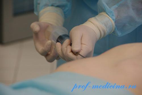 Липосакция ход операции
