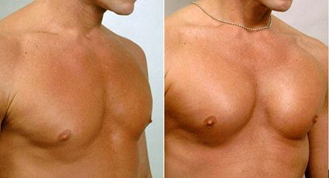 увеличение груди кислотой