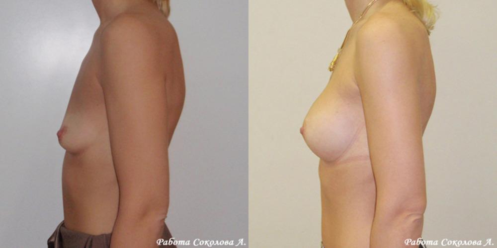 Стоимость увеличения грудей в киеве