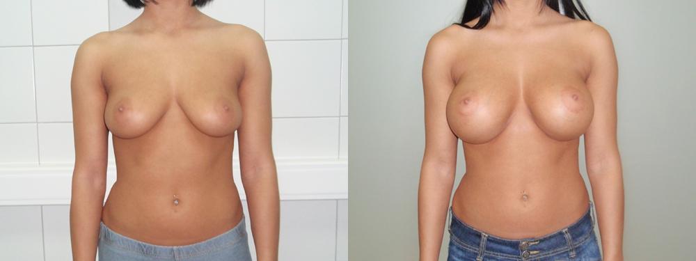 Точечный массаж токуиро намикоши для увеличения груди