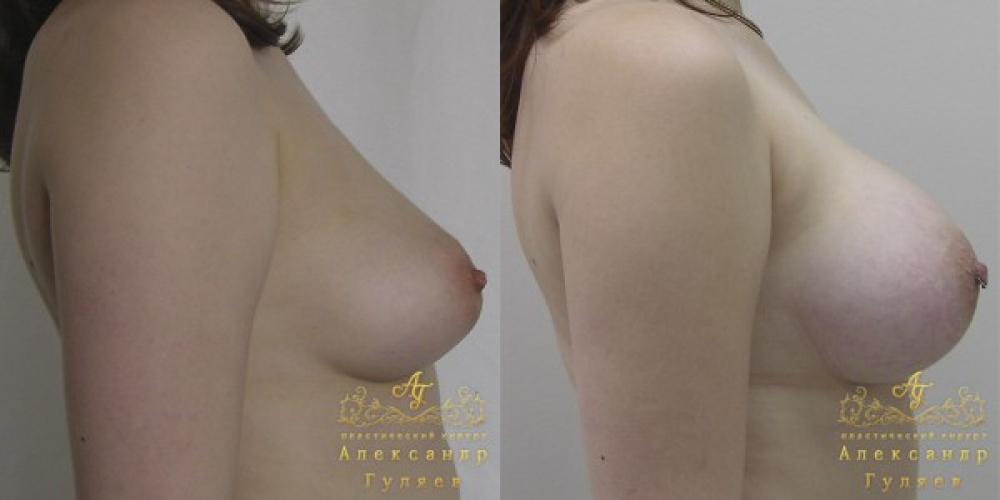 Пластика грудь подтянуть