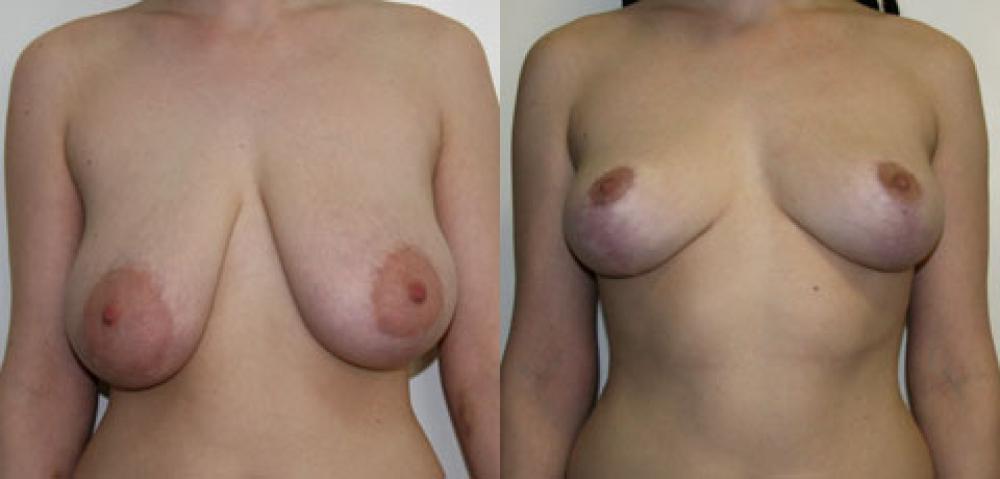 Уменьшение груди (молочных желёз) или редукционная маммопластика - хирургич