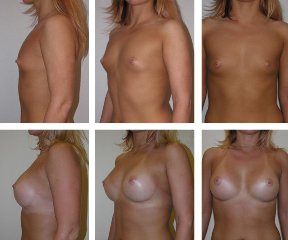 Обои саша тубулярная большая грудь фото девушки африканские