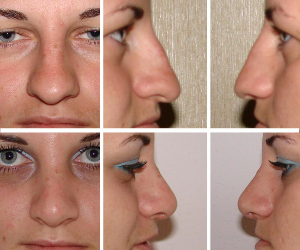 пластические операции носа цены: