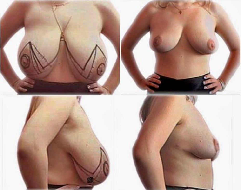 Если грудь не заживает после маммопластики
