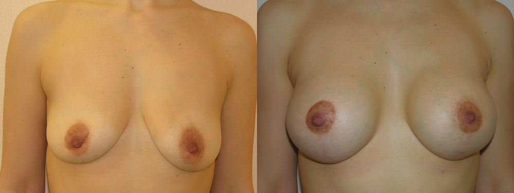 Где купить крем для увеличения груди