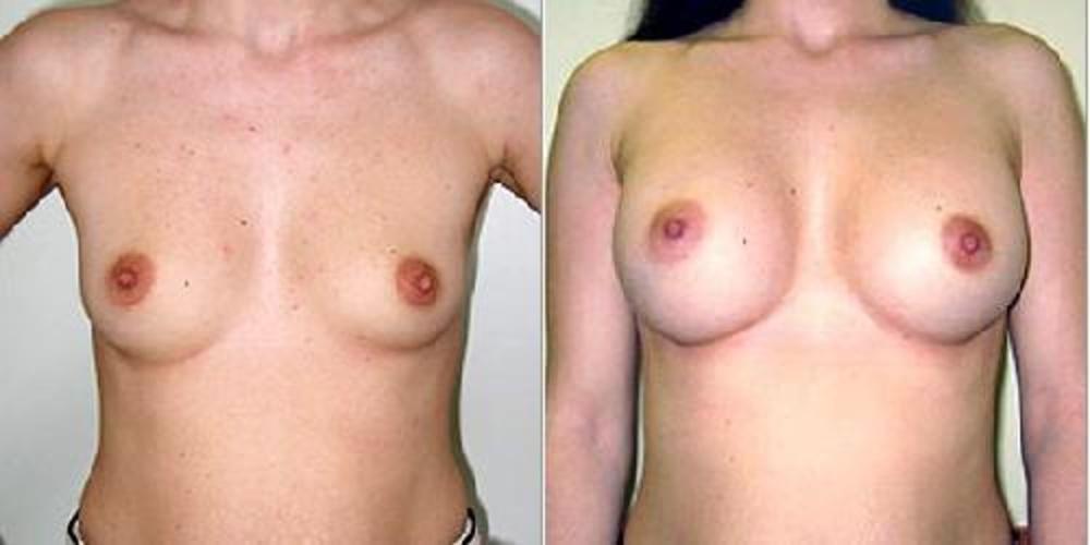 Еленамалышева увеличение груди