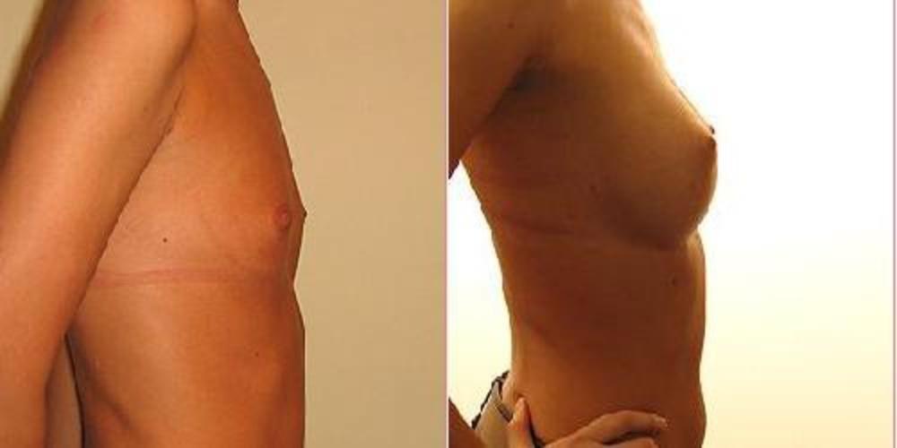 Увеличение груди кормление грудью