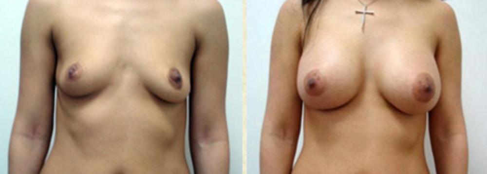 Цены на увеличение груди в астрахани