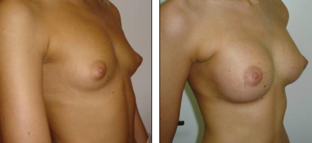 Рецепт увеличение груди в домашних условиях