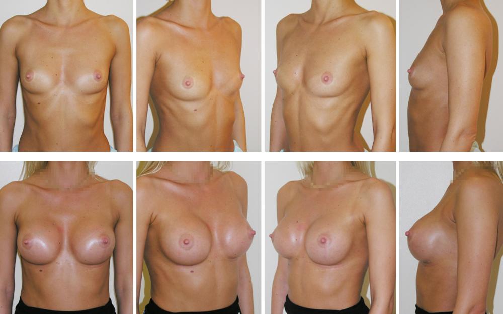 Пластическая хирургия подтяжка и увеличение груди с круглыми имплантами