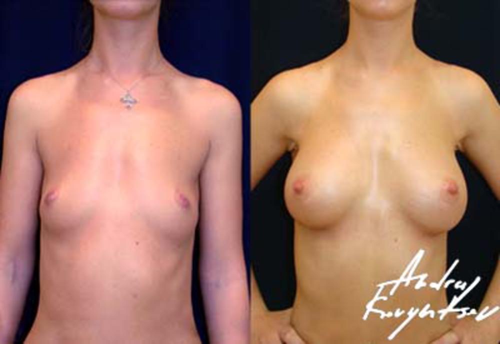 Как увеличить грудь советы бесплатно