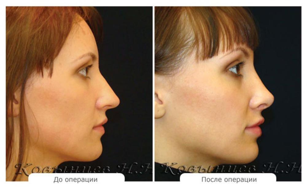 Пластическая операция на нос в домашних условиях