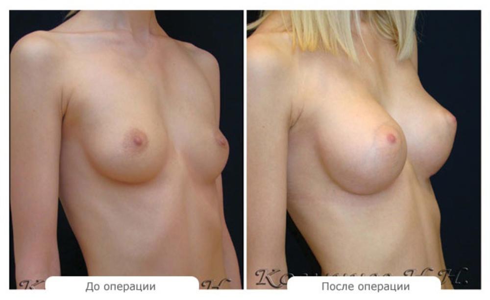 Цена на увеличение груди в красноярске