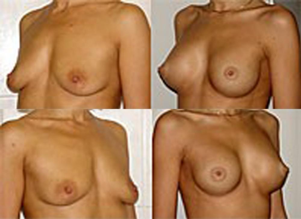 Как сделать маммографию если грудь маленькая