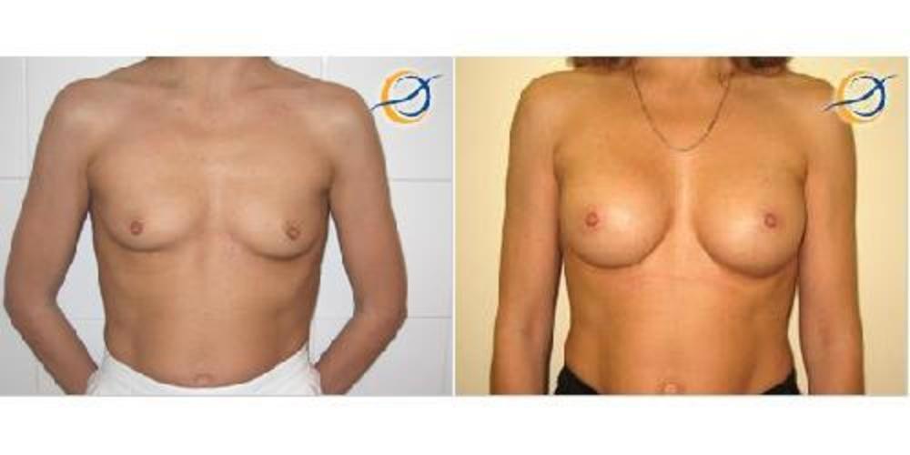 Подтяжка груди с протезированием и переносом соска цена красноярск