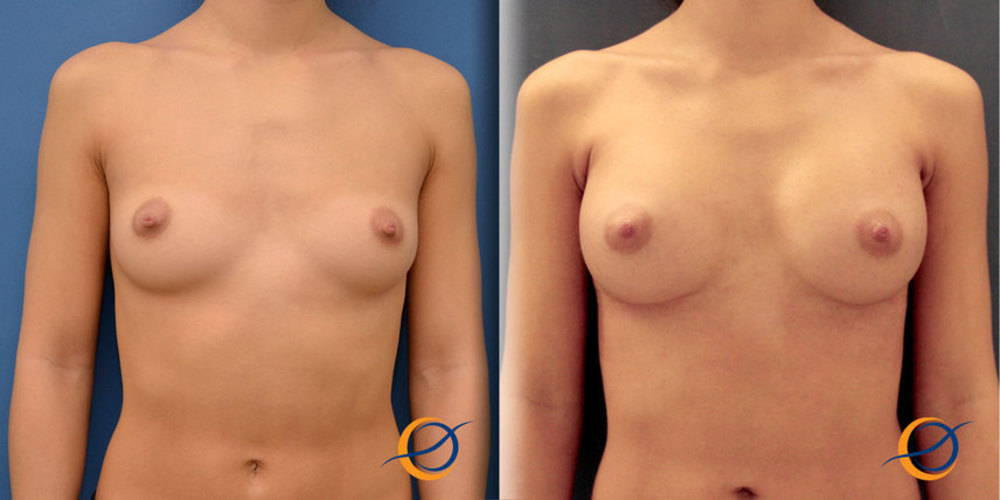 Форум увеличение груди прожестожель