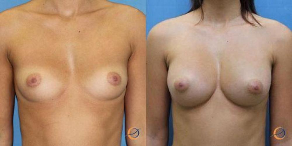 Секреты увеличение груди