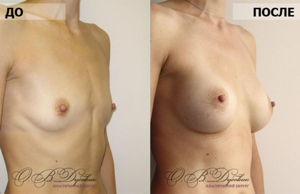 Вещест провоцируя постоянное увеличение груди в
