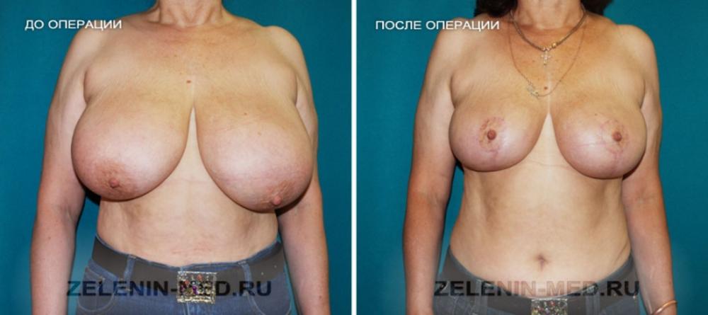 Увеличение груди с помощью фитогормонов какие