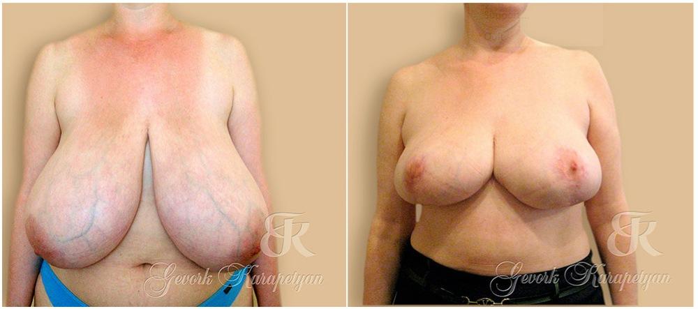 Аевит витамины польза для увеличение груди