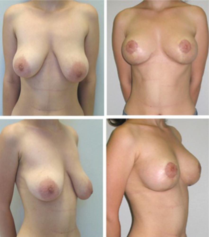Фото развития груди 12 фотография