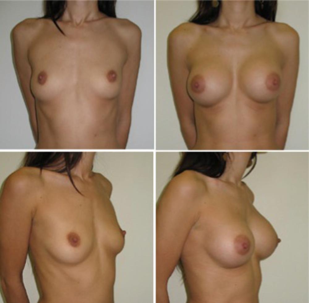 Синяя лампа увеличение груди