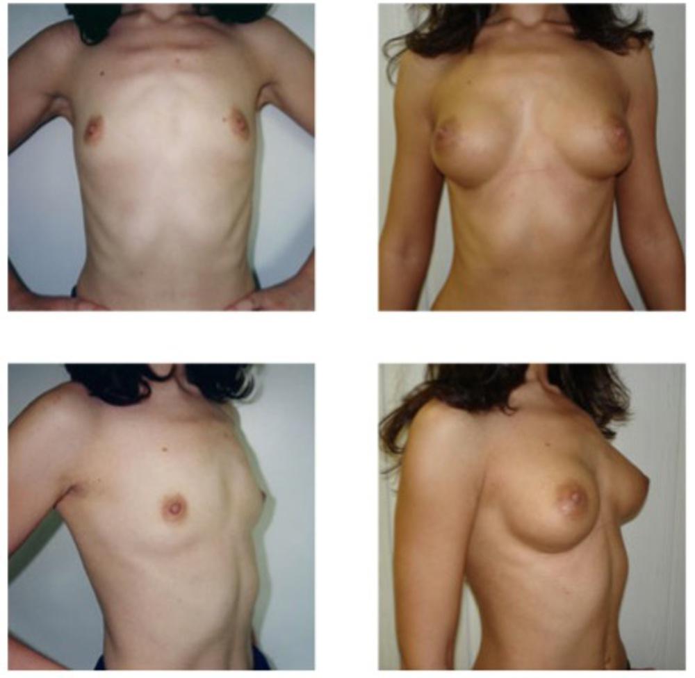 Как увеличить грудь на 1 1 5 размера больше без операций