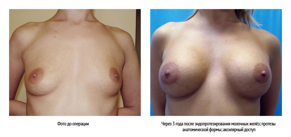 Можно использовать пояс миостимулятор для подтяжки груди
