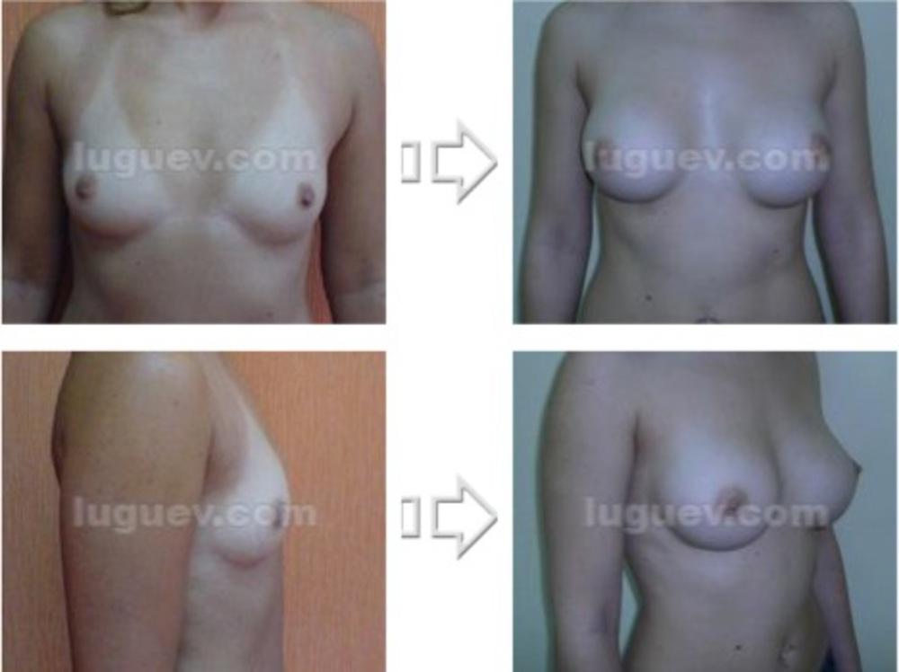 Маленькая грудь и оральные контрацептивы
