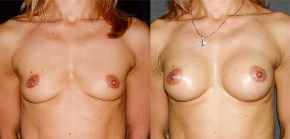 Белгороде импланты для увеличения груди стоимость