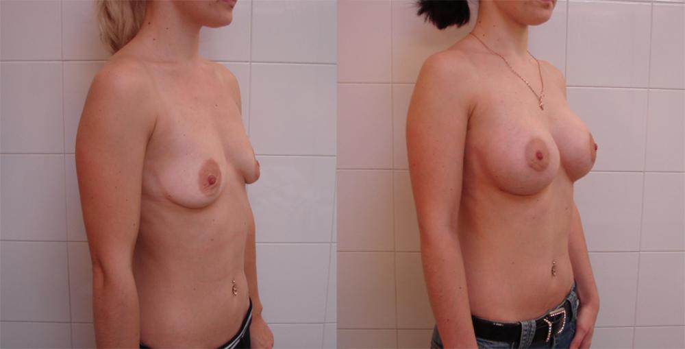 Увеличение груди в городе нижневартовске