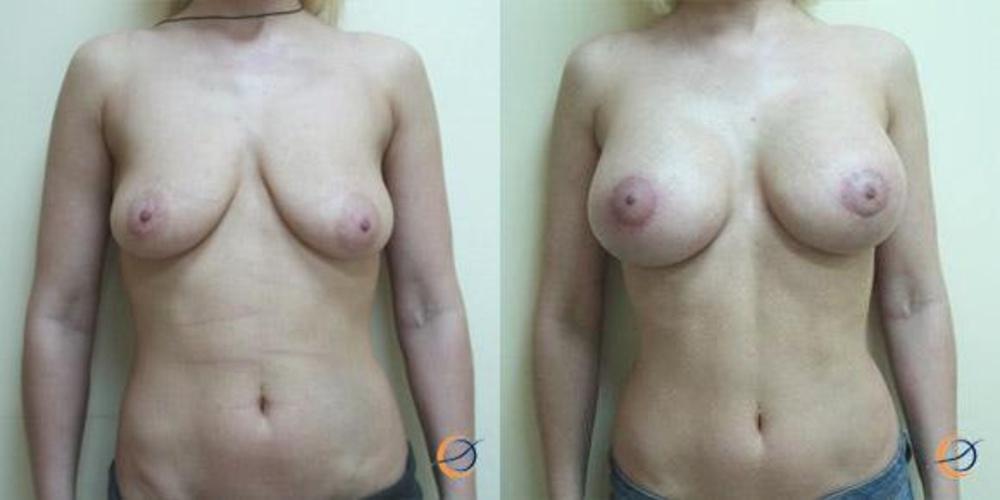 Таблетки для увеличения размера груди