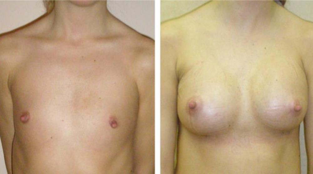Как увеличить грудь на некоторое время в 45 лет