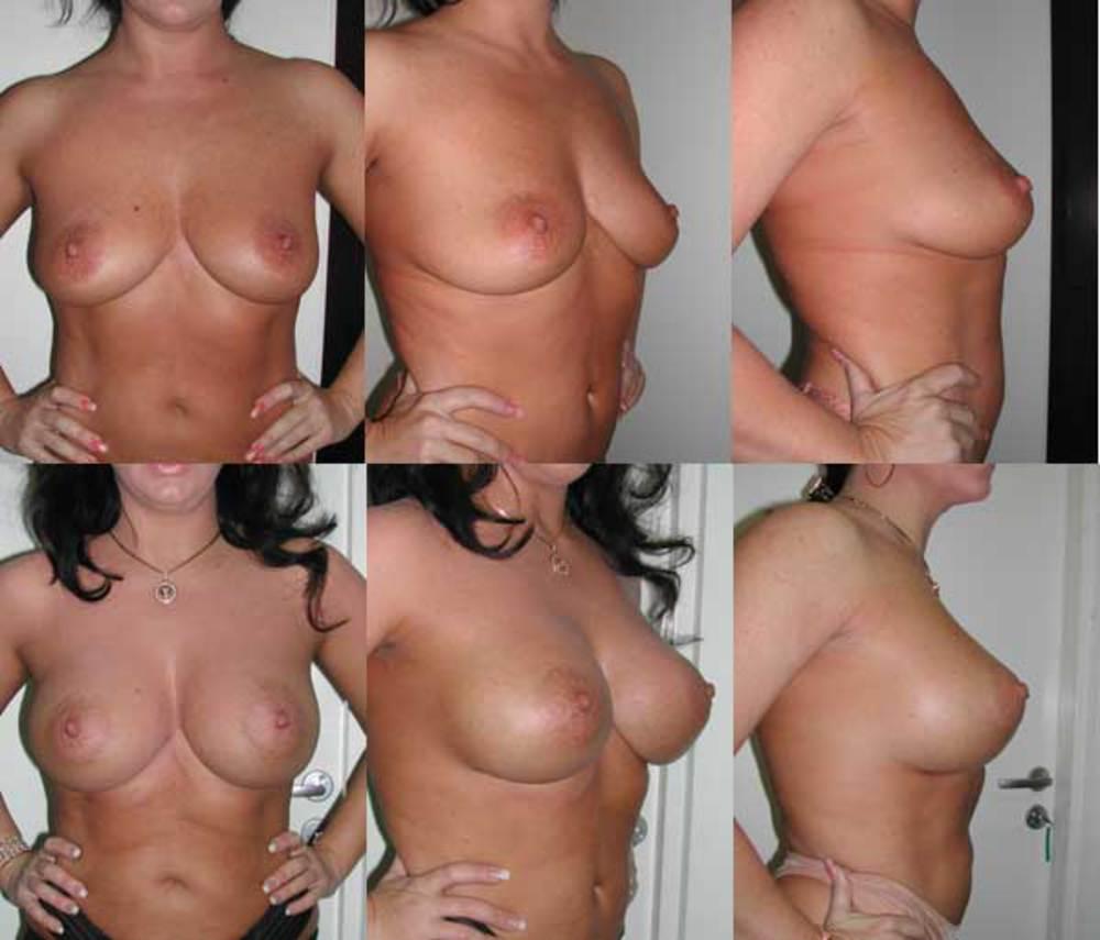 Массаж шиацу для увеличения объема груди ее упругости