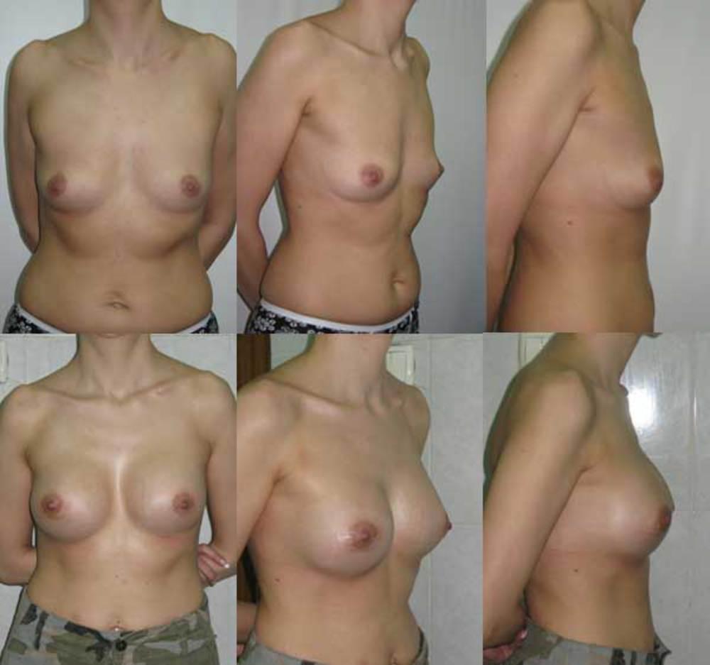Увеличение груди импланты мл профиль