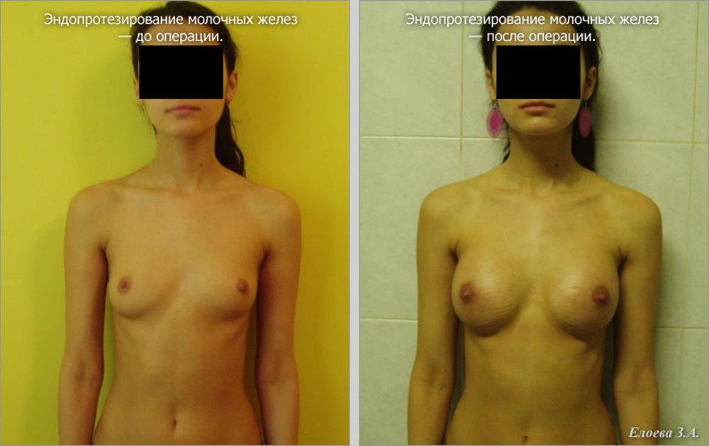 Увеличение груди и попы