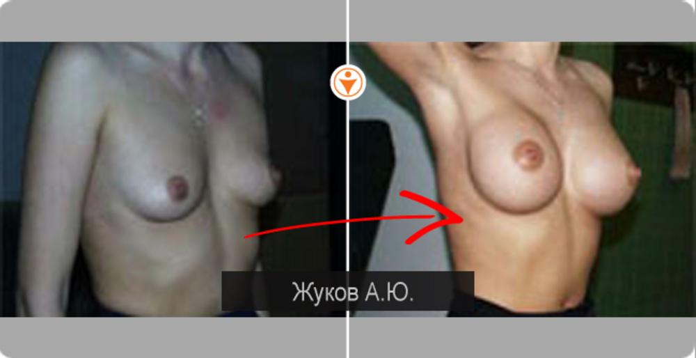 Увеличить грудь зделать бесплатно в москве