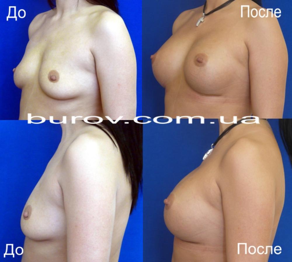 Пластическая операция увеличения груди стоимость в новосибирске
