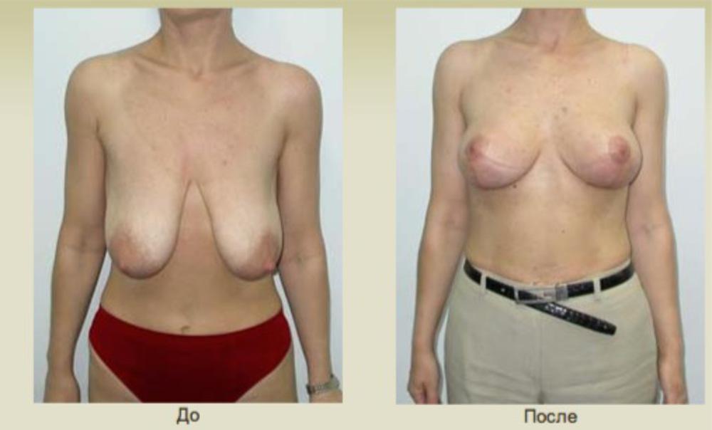 Как увеличить грудь в сис 3 карьера